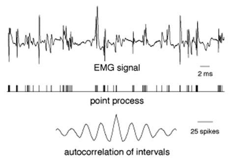 interference pattern analysis emg quantitative electrodiagnosis
