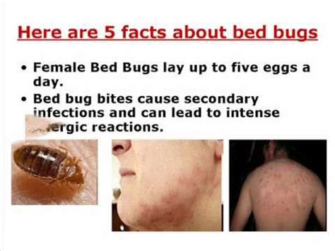 what can you put on bed bug bites where do bed bugs come from youtube