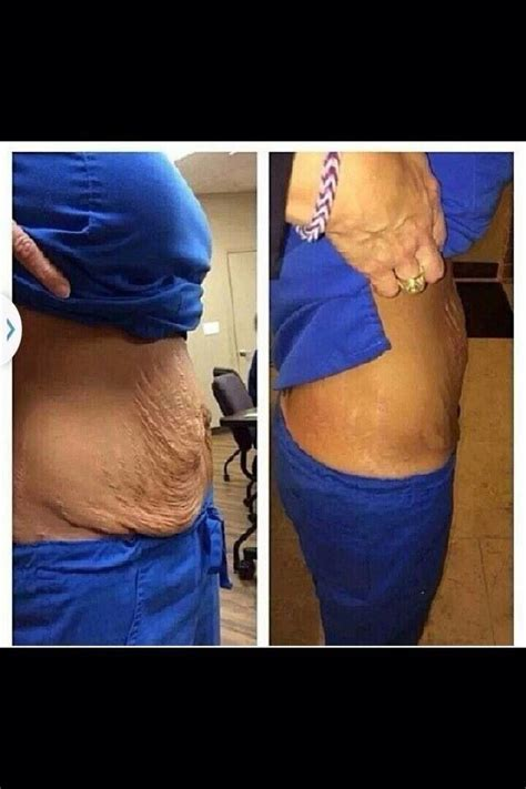 stretch marks after c section i am asked all the time and the answer is yes our wraps