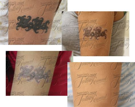 sugar land laser tattoo removal before and after laser removal pictures