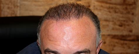 hair transplant cost 2014 how much does a fue hair transplant cost vinci hair