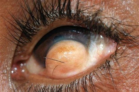 man with hair growing in his eyeball odd strange