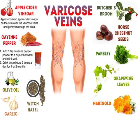 varicose veins treatment symptoms causes pictures varicose veins causes symptoms treatment diagnosis
