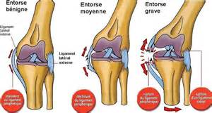 entorse du genou traumatismes au ski douleur genou