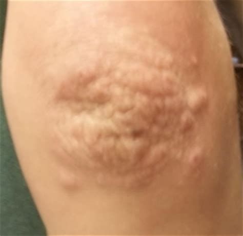 bumps on elbows and knees pimples white red not itchy
