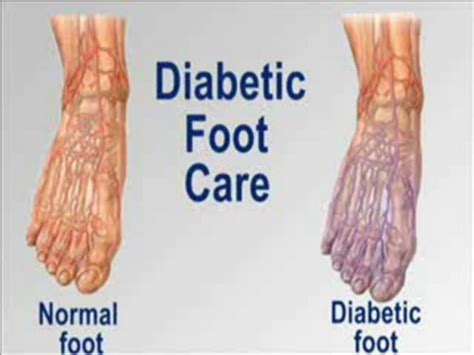 1000 images about diabetic foot on other