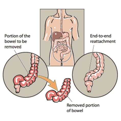 removal of colon section diverticulitis part 2 intelligent dental