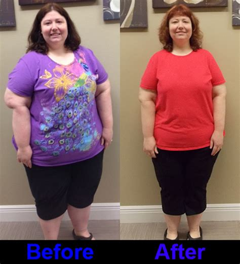 weight loss 6 months after gastric sleeve weight loss 4 months after gastric sleeve postsindiano9