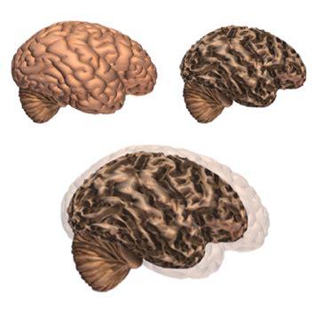 l alzheimer porta alla morte il nostro cervello