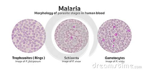 blood film morphology quiz microscopic examination of blood films from malaria