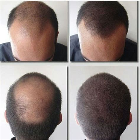 hair shops who work with thin balding hair in chicago hair toppiks give the gift of thicker fuller hair