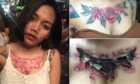 tattoo remover snl thai student left with horrific scars after removal