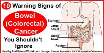 color cancer colon cancer warning signs and types of symptoms 2016