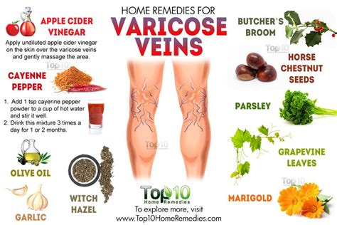 home remedies for varicose veins top 10 home remedies