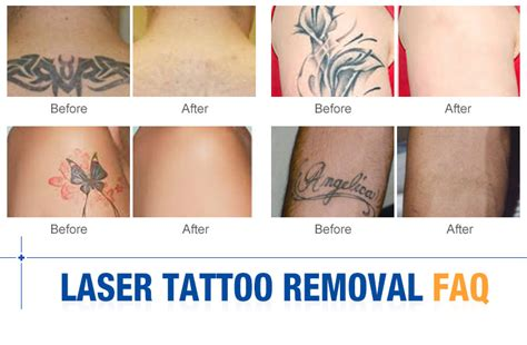tattoo removal yag laser professional tattoo removal q switched nd yag laser for