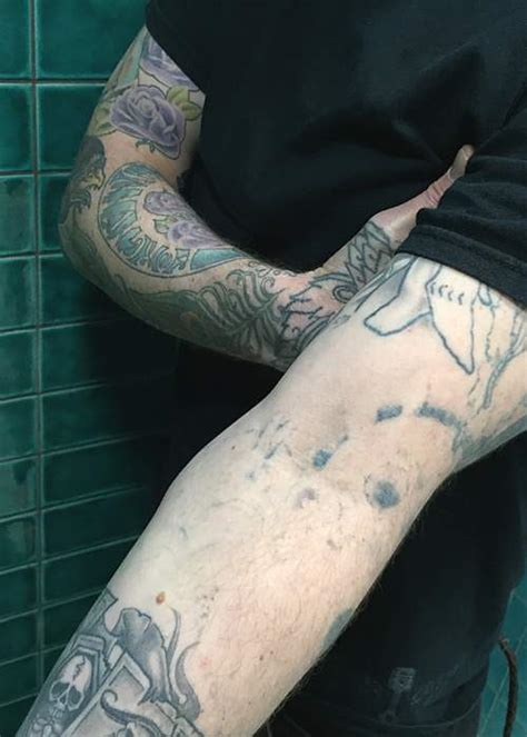 sleeve tattoo removal undrawing my tattoos news