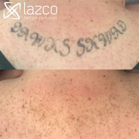 tattoo removal story brisbane laser removal clinic lazco removal