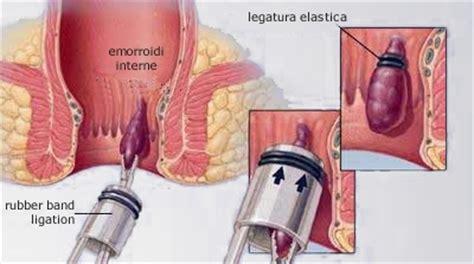 gavocciolo emorroidario interno curare emorroidi