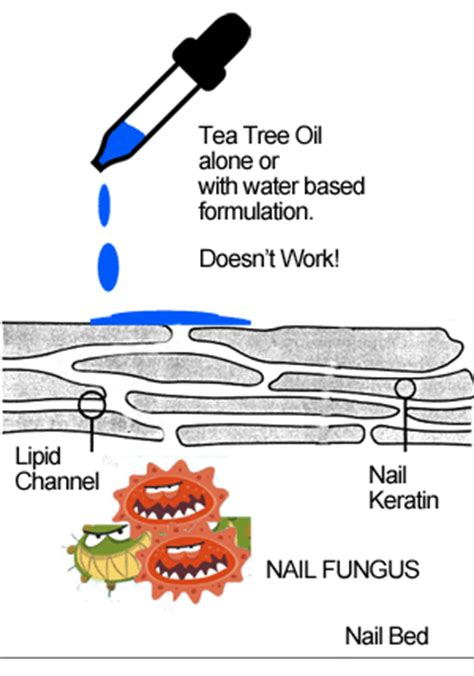 tea tree oil ingrown toenail ingrown toenail toenail fungus treatment reviews toenail fungus treatments