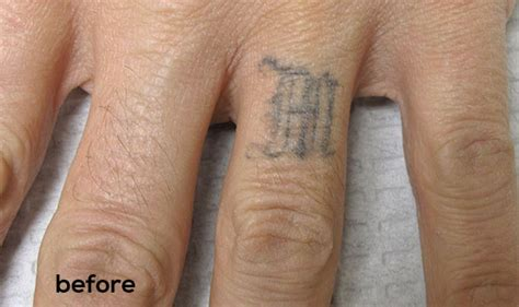 tattoo removal process and cost laser tattoo removal pricing cost allentown tattoo removal