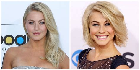 short hair vs long hair for people with scalp psoriasis hair styles short hair vs long hair which one do you