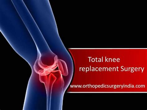 powerpoint templates knee total knee replacement surgery in delhi authorstream