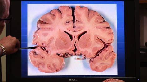 gray matter brain diagram grey matter choice image how to guide and