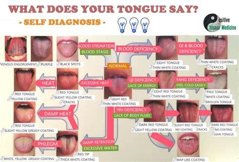 tongue color chart positive medicine inc