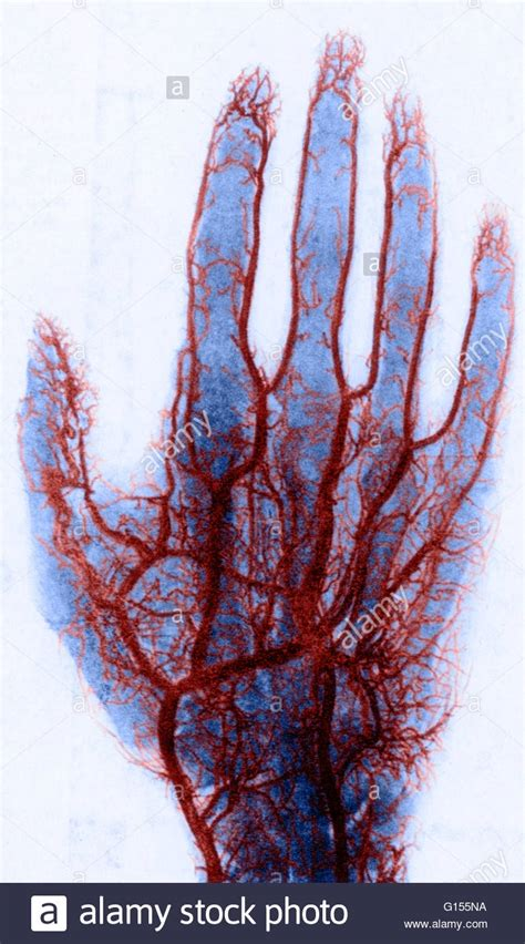 color of blood in veins color enhanced x of blood vessels in the stock