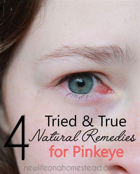 Sprei Eye Pink 4 tried true remedies for pinkeye new on
