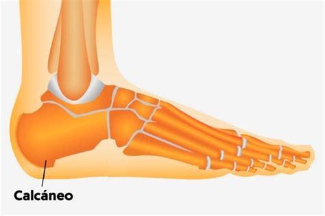 dolor en el talon al pisar dolor en el tal 243 n al levantarse puede ser espol 243 n o