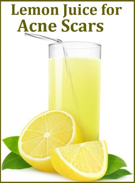 Detox Juice Recipe For Acne by Lemon Juice For Acne Scars My Style