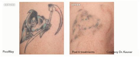 tattoo removal cost utah laser tattoo removal gallery picosure inklifters