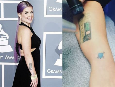 kelly osbourne tattoos removed 17 best images about picosure on artworks