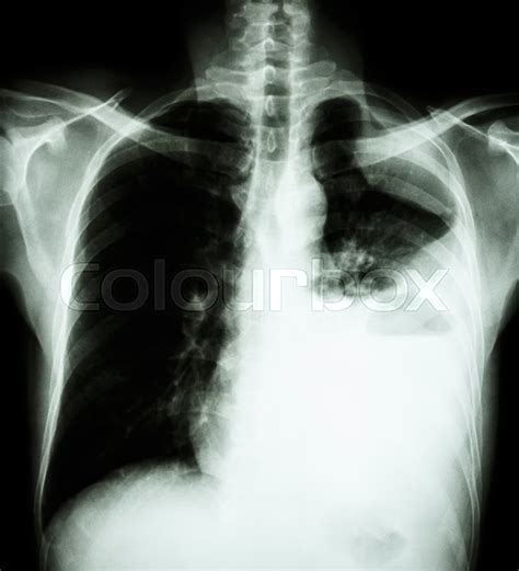 lung cancer film  ray  chest pa upright show