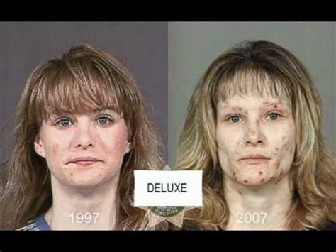 Meth Detox Time by From Drugs To Mugs Shocking Before And After Photos Show