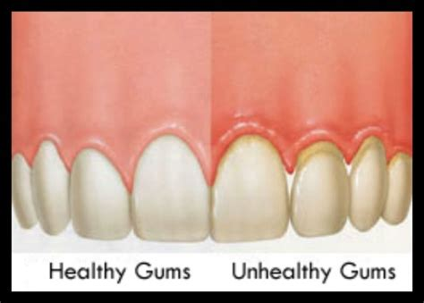 healthy gums healthy vs unhealthy gums dentistry