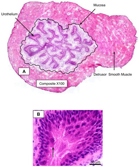 representative cross section representative photomicrograph of the expected morphology