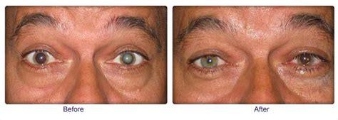 cataract surgery femto second laser assisted cataract surgery kapil eye hospital