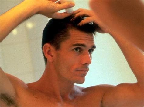 hair thinning at temples and top hair loss explained how and why men go bald the independent