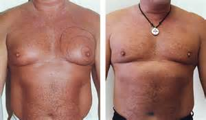 Breast Reduction It Might Be Useful To Speak To Someone Who Has Already Had