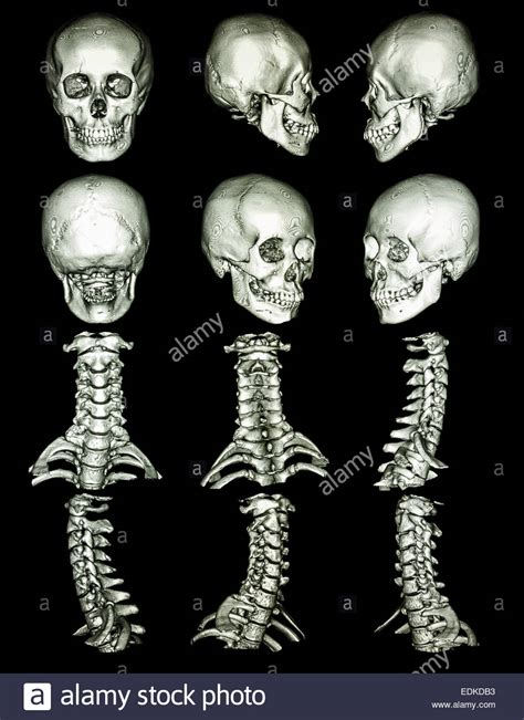 What Shows Up On A Live Scan Background Check Ct Scan Computed Tomography With 3d Graphic Show Normal Human S Stock Photo Royalty