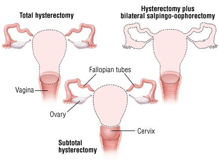 hysterectomy guide drugs