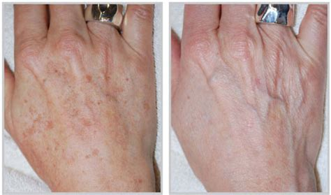 tattoo removal fargo nd hand rejuvenation services in fargo nd altaire medical spa