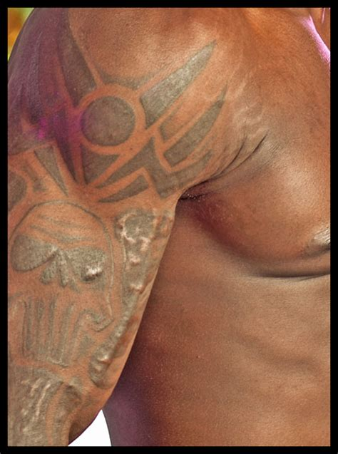 image gallery keloid and tattoos