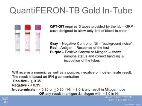 test quantiferon screening for tuberculosis infection ppt
