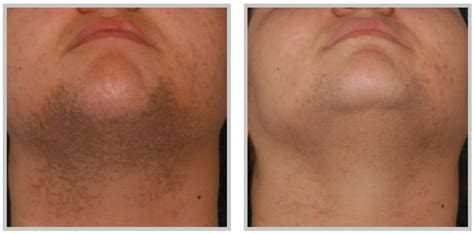 armpit hair laser removal om hair