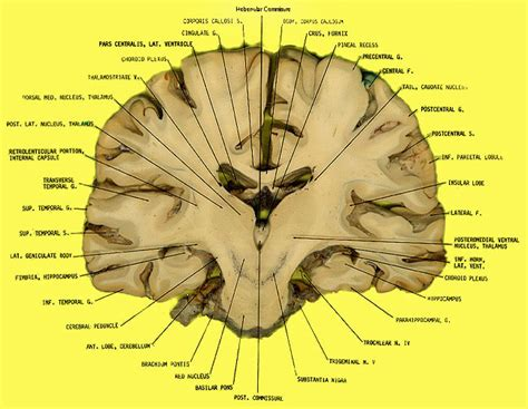 brain coronal section coronal brain labeled www pixshark com images