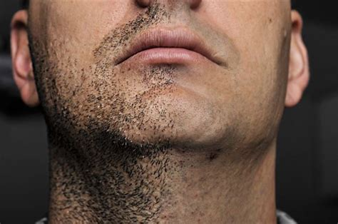 pictures of in grown hair in chin ingrown hair causes treatment prevention skinpractice