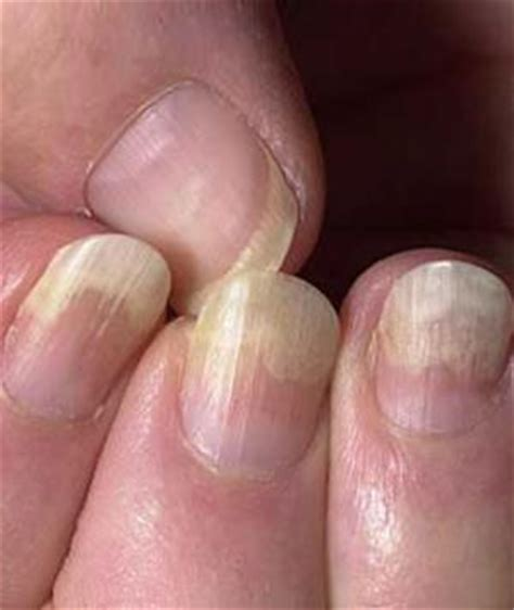 toenail lifting from nail bed image gallery thyroid fingernails